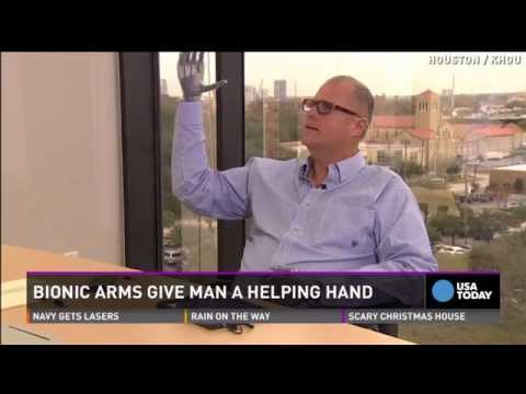 Man shocked by 7,000 volts receives new bionic hands