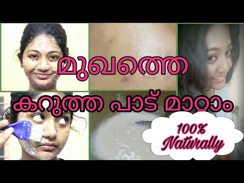 💖How To Remove Dark Spot From Face || Naturally at home|| No side effects|| 100% Result