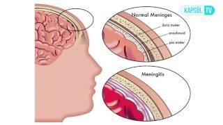 Beyin Travması Geçiren Hasta Nelere Dikkat Etmelidir?