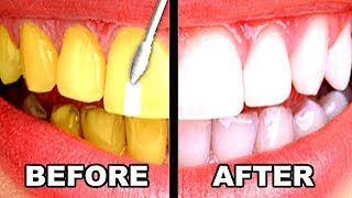 14 SIMPLE LIFE HACKS FOR TEETH WHITENING EVERYONE SHOULD KNOW