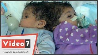 """بعد طردهما من مستشفى أبو الريش.. والدا طفلتين ملتصقتين من الرأس يستغيثان بالسيسى: """"ما لناش ضهر"""""""