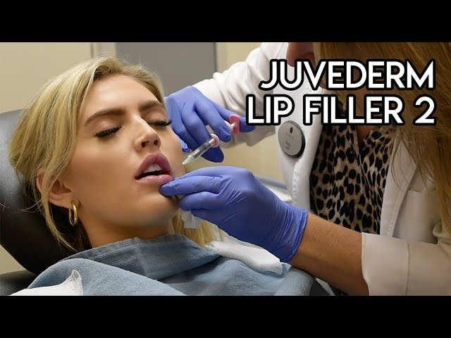 Juvederm Lip Filler 2