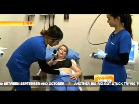 GoodDay Sacramento - Elk Grove Medical Spa - Dr. Mahmoud Khattab - CoolSculpting Medical Spa Part2