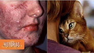 enfermedades que transmiten los gatos a humanos