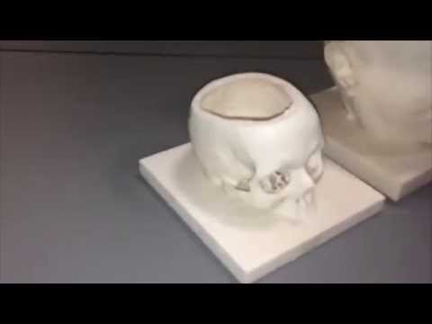 3DHeads (CT and MRI Scan)