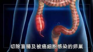 NMA 2009.12.17 動新聞 腰背痠痛 竟罹患盲腸腺癌