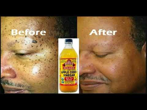 how-to-use-apple-cider-vinegar-to-remove-your-own-skin-tags-at-home