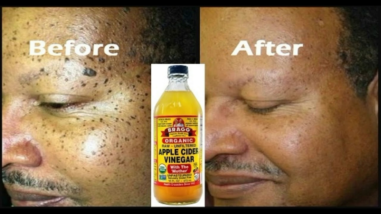 HOW TO USE APPLE CIDER VINEGAR TO REMOVE YOUR OWN SKIN