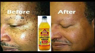HOW TO USE APPLE CIDER VINEGAR TO REMOVE YOUR OWN SKIN TAGS AT HOME
