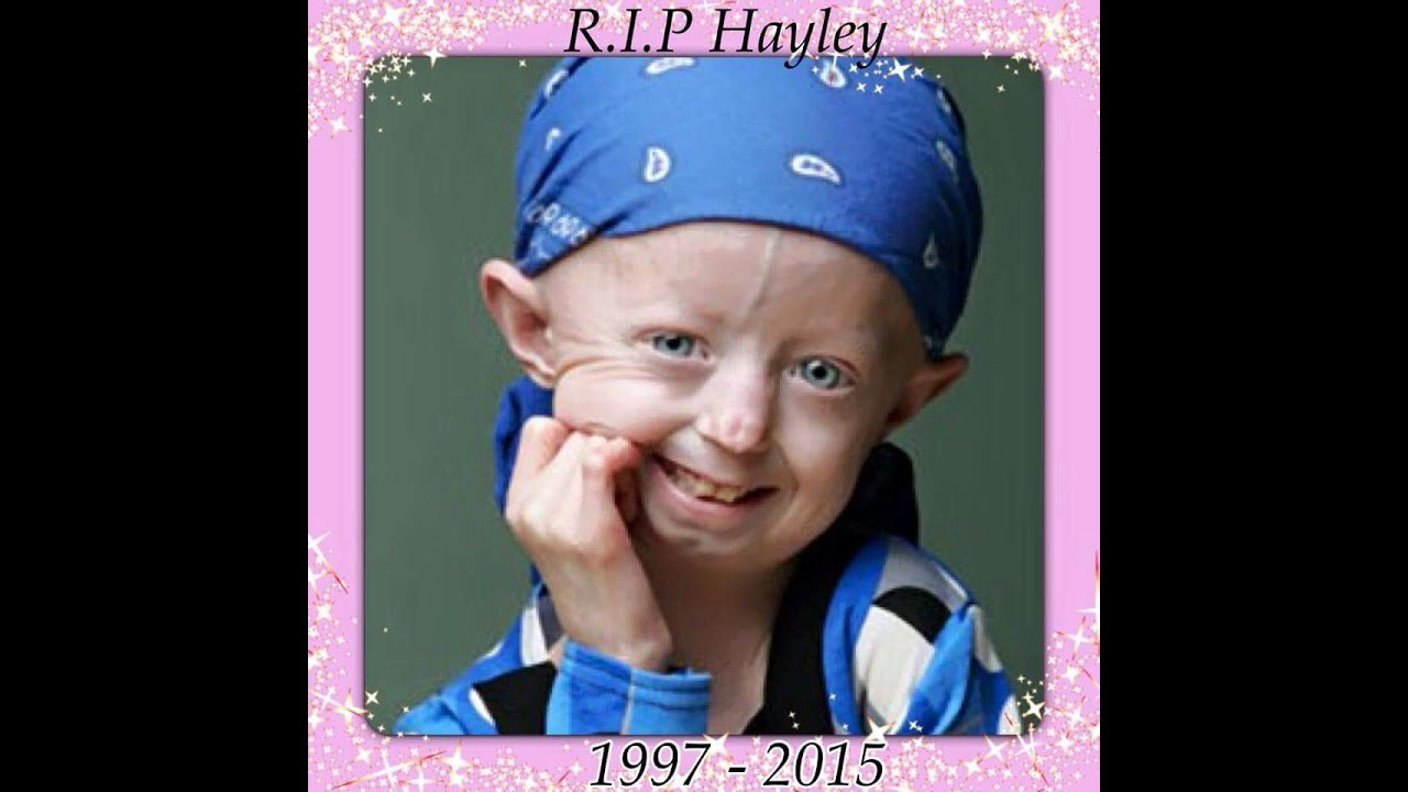 A tribute to Hayley Okines!! - RIP Hayley (Supporting Progeria UK)