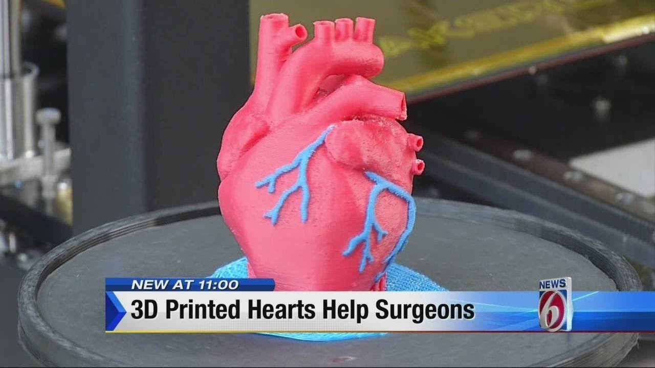 11pm 3D Printed Hearts Help Surgeons