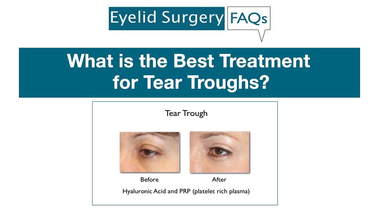 Lower Eyelid Surgery FAQ Videos