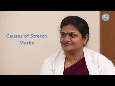 Worried about How to Reduce Stretch Marks during pregnancy? Watch this
