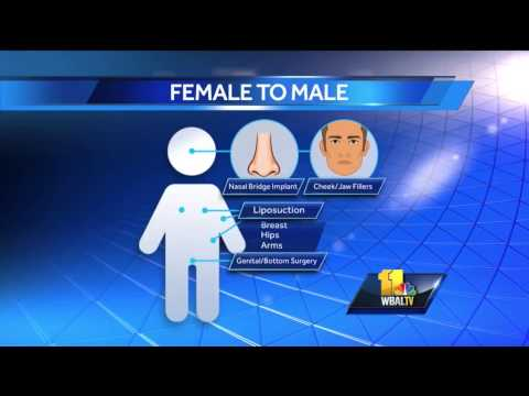 Gender reassignment surgery extremely complicated