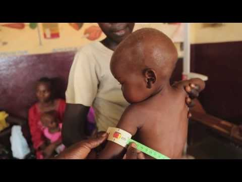 "Malnutrition's ""Perfect Storm"" in Central African Republic"