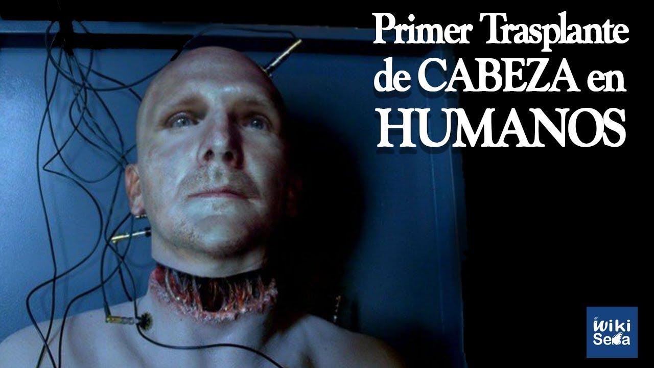 1° Trasplante de Cabeza Humano 2017 | Parte 1
