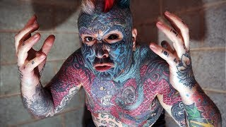 Britain's Most Tattooed Man Could Lose Arm