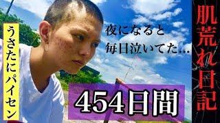 【肌荒れ日記】モデル失格〜454日間の屈辱〜 thumbnail