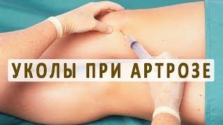 видео Гиалуроновая кислота для суставов: эффект, как применять, показания