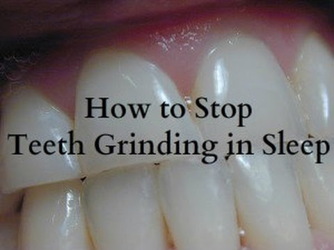 How to Stop Teeth Grinding in Sleep - Bruxism Treatment