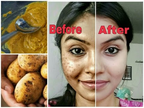 Thumbnail: Remove dark spots in just 7 days | 100% Natural | Get rid of uneven skintone