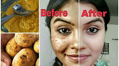 hqdefault - How To Remove Dark Acne Spots From Face Naturally