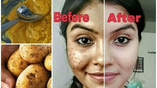 Remove dark spots in just 7 days | 100% Natural | Get rid of u…