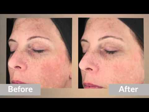 Skinmedica Lytera Skin Brightening Complex T