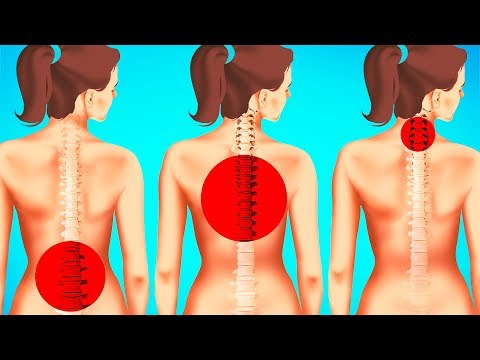 1-Minute Exercises to Improve Posture and Reduce Back Pain