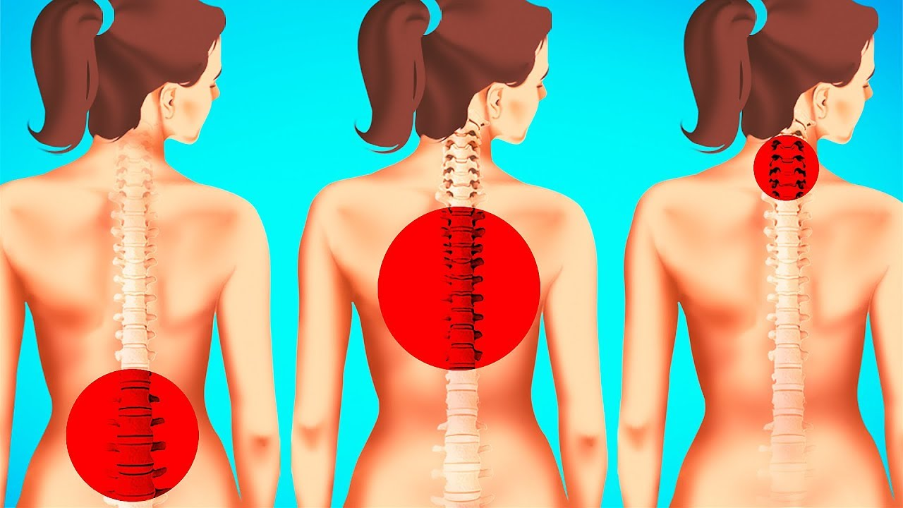 83c1402be7611 1-Minute Exercises to Improve Posture and Reduce Back Pain - YouTube