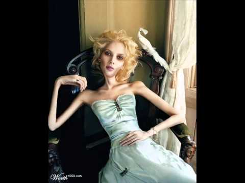 Anorexia Nervosa - YouTube