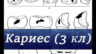 Наука стоматология. Кариес 3 го класса по Блеку.(В этом видео мы вам расскажем как, что такое кариес 3 го класса по Блеку. Как всегда с вами Дантист и Стоматол..., 2015-05-22T19:48:31.000Z)