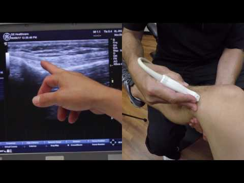 MSK Ultrasound of the Knee w/ Mike Jablon