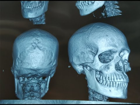 Fractures of the facial bones
