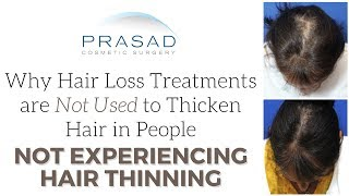 Why Hair Loss Treatments Aren