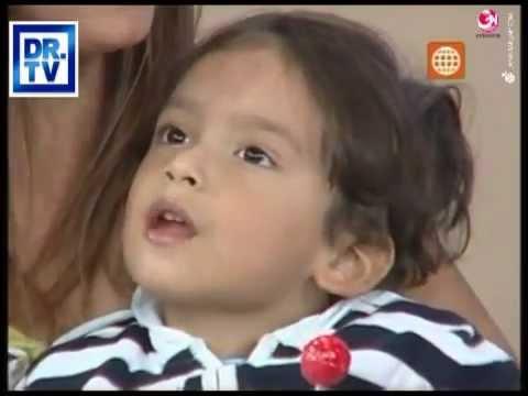 agenesia parcial del niño del cuerpo calloso consecuencias