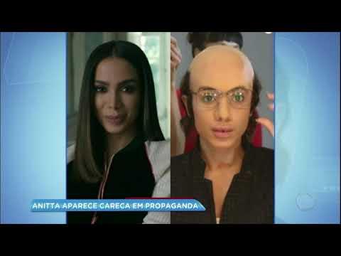 Hora da Venenosa: Anitta aparece careca em propaganda
