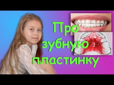 Пластина на зубы! О том, как ее ставят, и как с ней жить