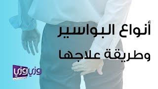 أنواع البواسير وطرق علاجها