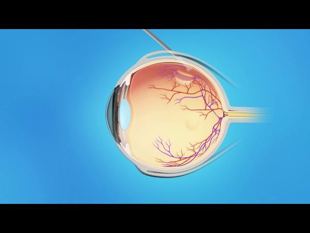 Retinal Detachment Cryopexy