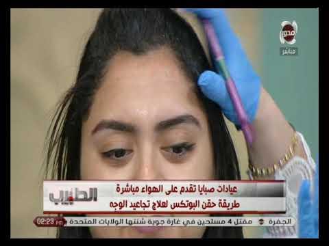 الطبيب | شاهد طريقة حقن البوتكس مع د/ هبة عادل