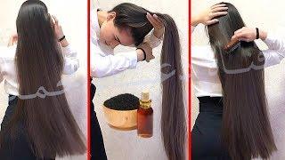 سبراي فعال جدا لتنشيط البصيلات وانبات الفراغات يطول الشعر ✔✔بسرعه جنونيه ويكثف الشعر الخفيف والضعيف