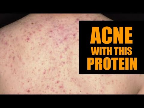 DONT eat this- it will cause acne
