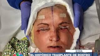 EL HISTÓRICO TRASPLANTE DE ROSTRO QUE LE DIO UNA SEGUNDA OPORTUNIDAD A UNA JOVEN ESTADOUNIDENSE