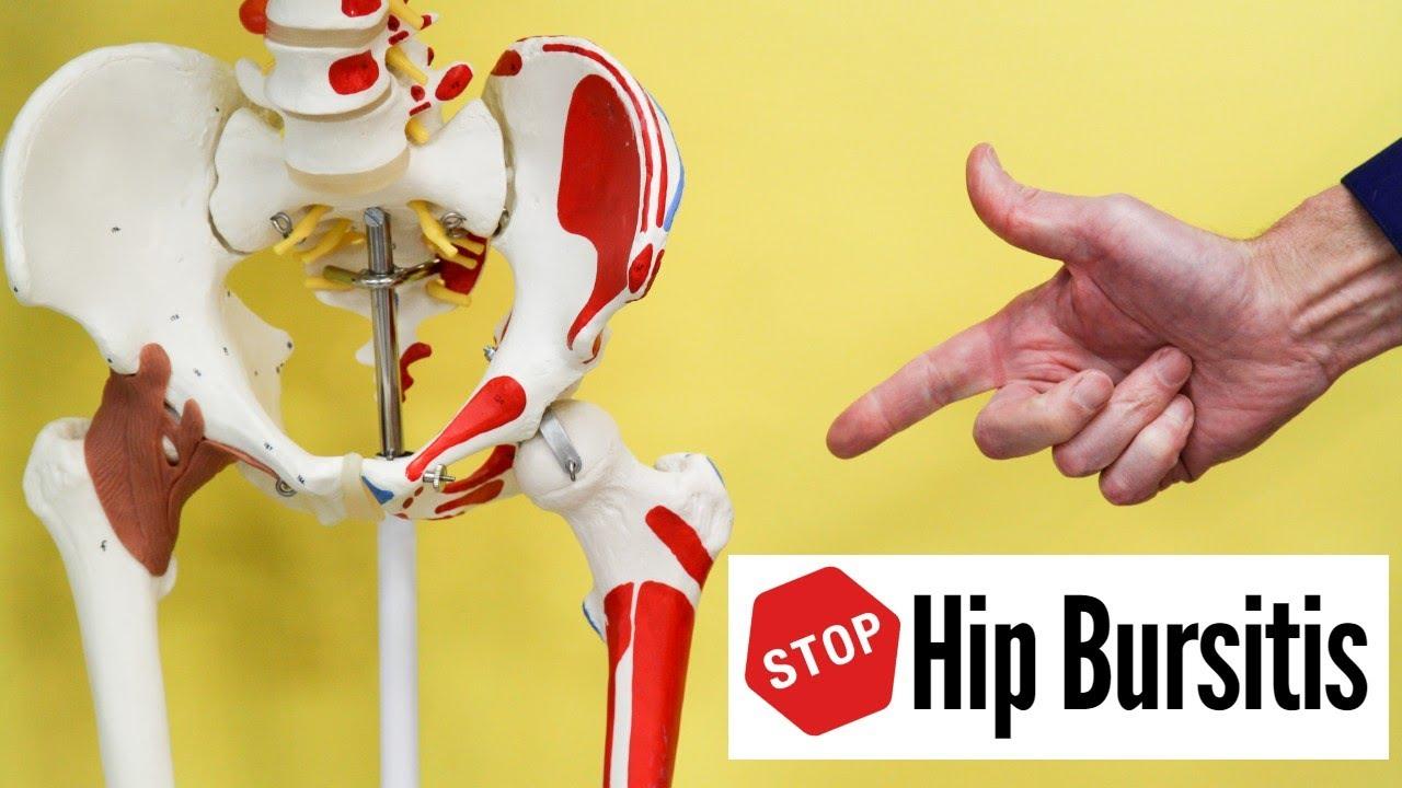 hip bursitis kenőcs ízületi gyulladás a bokaízület 3 fokos