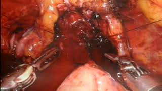 Robotic radical cystectomy in a man - video 4/5