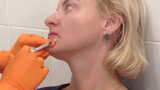 Аириском: применение БОТОКСА в области носогубной складки, ноздрей и для поднятия кончика носа.