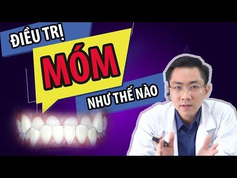 cách vệ sinh răng miệng cho người niềng răng tại Kemtrinam.vn