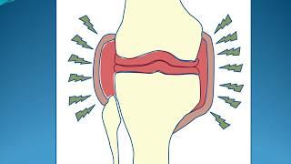 Sangre rodilla de coágulo tratamiento de