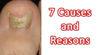 Toenail Fungus Infection - 7 Causes and Reasons Of How Toenail Fungus Can Occur